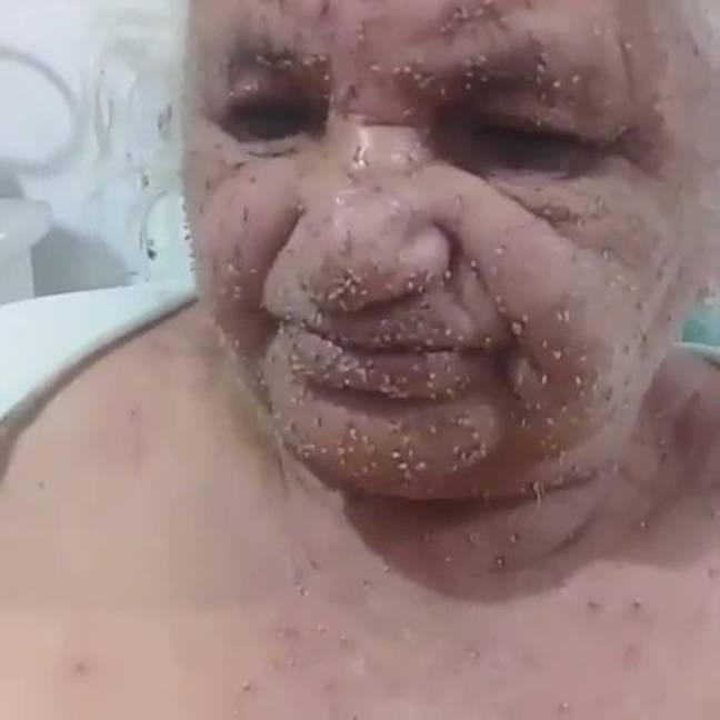 Mulher é hospitalizada após ser atacada por milhares de abelhas furiosas